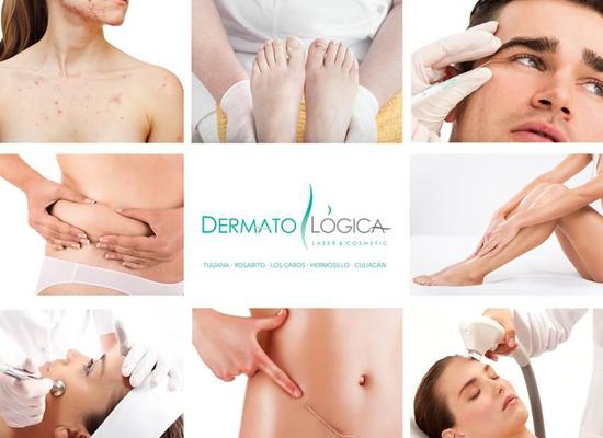 Dermatol 243 Gica Laser Amp Cosmetic Promozone